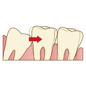 親しらずが横向きに生えてきて手前の歯を押して歯並びに影響してしまう