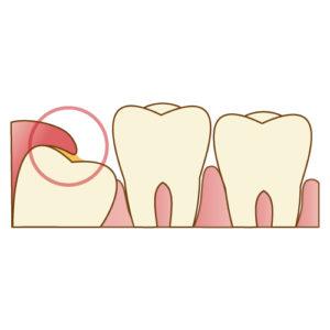 親知らずのまわりの歯茎の炎症