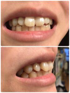 歯並びの写真