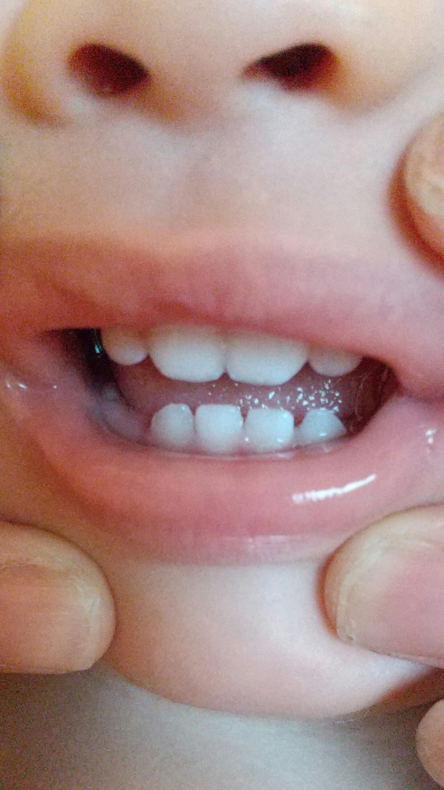 前歯が生えてきました